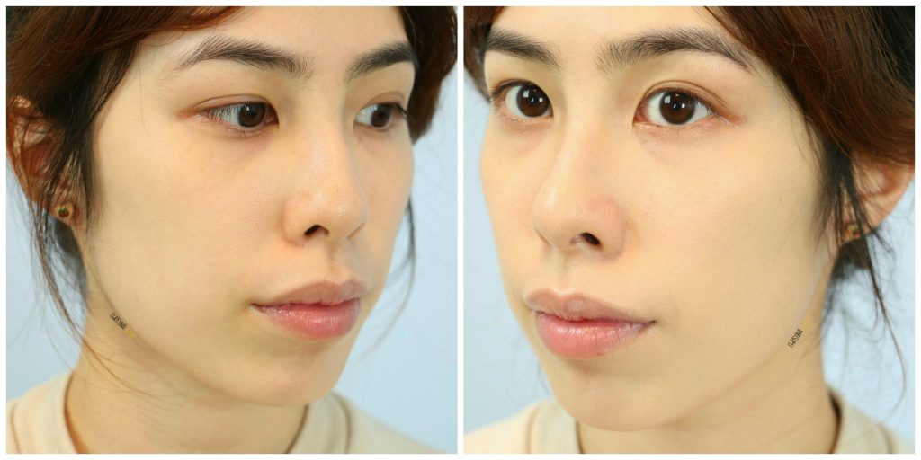 etude-house-any-cushion-cream-filter-before-and-after